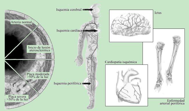 Evoluciones de la placa y manifestaciones clínicas de la aterosclerosis